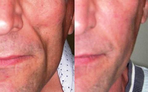 Lipoatrofia Facial