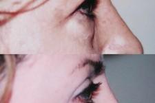 Cirugía de Parpados Inferiores